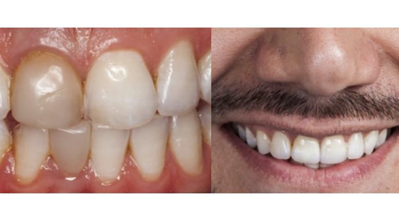 Dinámica lumínica en dientes anteriores con cerámica vítrea