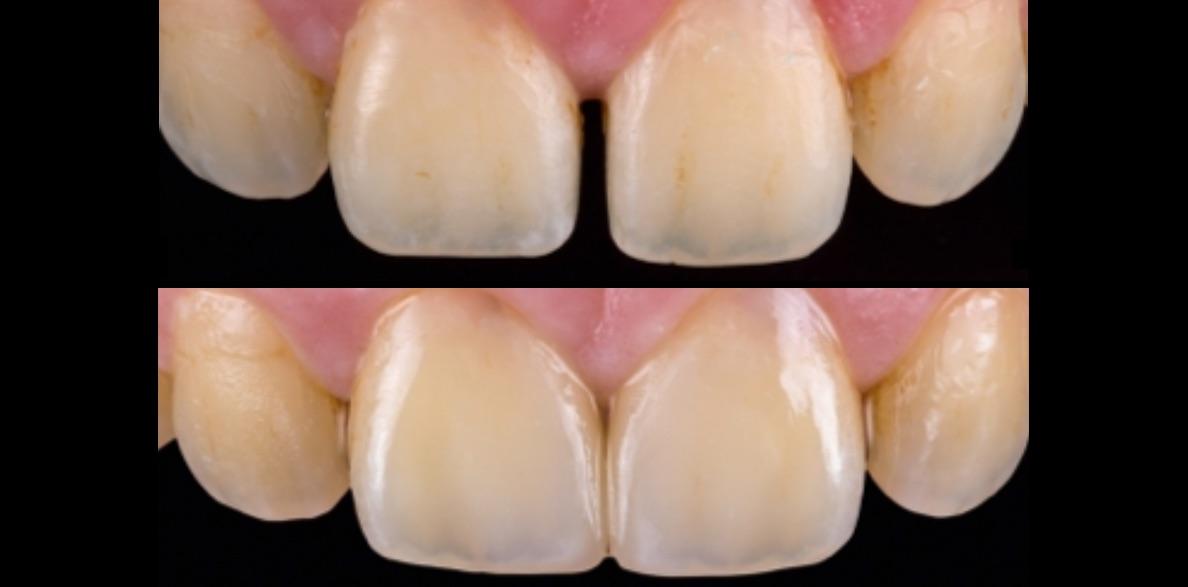Restauración no invasiva con microcarilla de cerámica híbrida