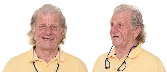 Fig. 1. Situación inicial del paciente. El paciente perdió gradualmente sus dientes y llevaba una prótesis implantosoportada en la mandíbula que no se ajustaba a sus condiciones específicas.