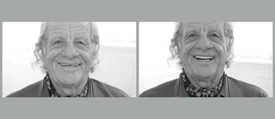 Figs 11a, 11b. El paciente con la vieja dentadura (izquierda) y con el set-up diagnóstico (derecha).