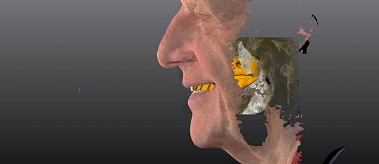Fig. 13. Los datos de CBCT y STL del paciente coincidieron con los escaneos faciales en 3D del software Zirkonzahn.Implant-Planner. El prototipo terapéutico se diseñó en la configuración de set-up diagnóstico (dientes blancos).