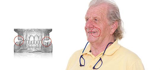 Fig. 14. El prototipo terapéutico maxilar correspondía al plano oclusal fisiológico registrado, a diferencia de la restauración mandibular, que seguía reflejando el antiguo plano oclusal incorrecto. Con el fin de ajustar la restauración mandibular a la nueva se realizaron table-tops y colocaron a la restauración mandibular existente.
