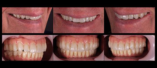 Fig. 15. El paciente con el prototipo terapéutico hecho con la resina Multistratum® Flexible en la arcada maxilar y las table-tops en la restauración mandibular existente.