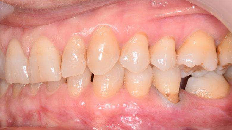 Progettazione ortodontica digitale di un caso di scissor bite