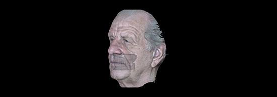 Fig. 2. Reproducción virtual del paciente en 3D realizada con el escáner facial 3D Face Hunter, verificada en el software Zirkonzahn.Scan haciendo el 'matching' con los escaneos de modelos de prótesis antiguas. Los modelos revelaron una alta dimensión vertical y el plano oclusal de la mandíbula caído dorsalmente.