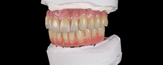 Fig. 22. A petición del paciente, también se renovó posteriormente la restauración mandibular. La restauración existente de titanio fue nuevamente revestida con composite para obtener el plano oclusal correcto.