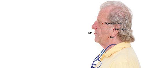 Fig. 5. El plano del stomion, paralelo a la línea ala-tragus, el ángulo de la mandíbula y el hueso cigomático.