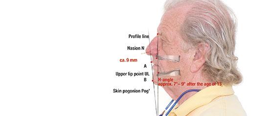 Fig. 6. La línea de Holdaway (línea de conexión entre el pogonion, el punto del labio superior y la intersección de la nariz.