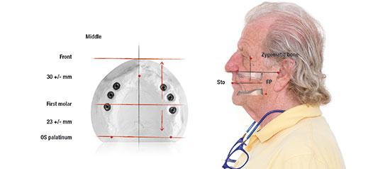 Fig. 7. Definición de los espacios dentales en el maxilar superior edéntulo y transferencia al modelo.