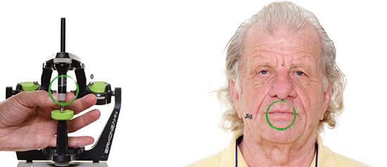 """Fig. 9. El paciente con el Aqualizer en la boca, que se usa para neutralizar y """"resetear"""" la oclusión entre los maxilares superior e inferior, para encontrar la posición correcta del maxilar inferior."""