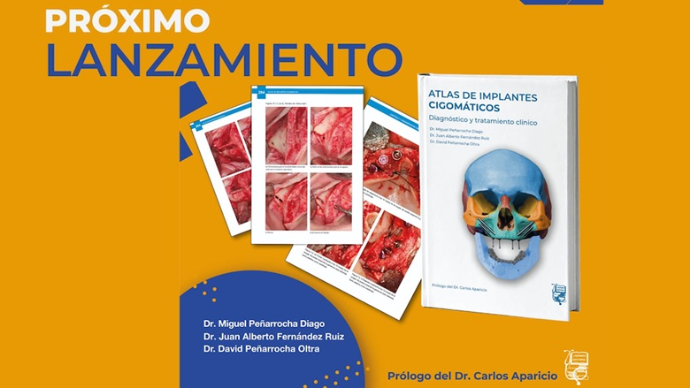 Atlas de implantes cigomáticos