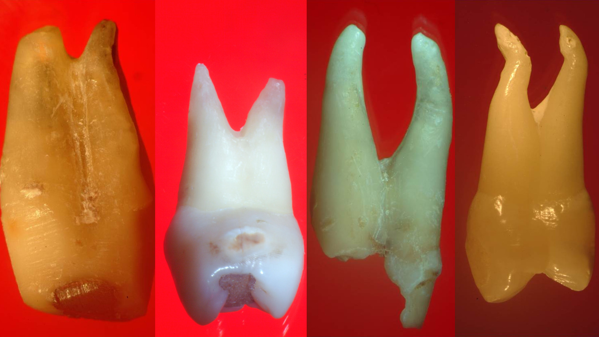 Buccal root of the bifurcated maxillary premolar—a danger zone during root canal therapy