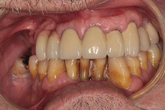 Fig. 1. Imagen frontal preoperatoria. Enfermedad periodontal avanzada y ausencias dentales en primer y segundo cuadrante compensadas mediante voladizos protésicos.