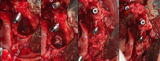 Fig. 16. Vista de la comunicación orosinusal una vez retirado todo el material de injerto contaminado y el tejido inflamatorio. Fig. 17. Se utilizan tapones y membranas de A-PRF para el cierre de la comunicación. Fig. 18. El defecto óseo se rellena con hueso autólogo, así como el resto de los defectos periimplantarios. El hueso fue obtenido durante la regularización ósea con pinza gubia. Fig. 19. El injerto es cubierto con membranas de A-PRF.