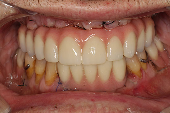 Fig. 21. Prótesis de carga inmediata del maxilar superior.