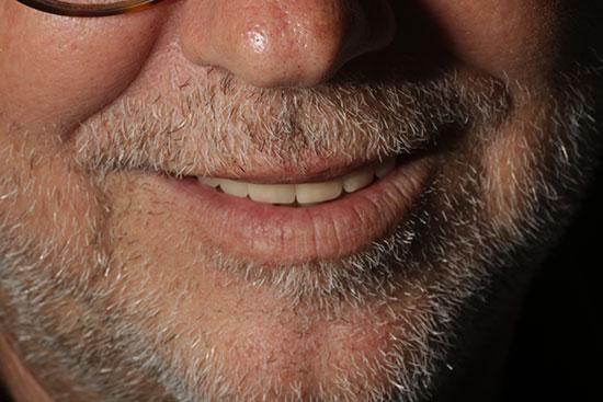 Fig. 26. Imagen extraoral de la sonrisa del paciente.