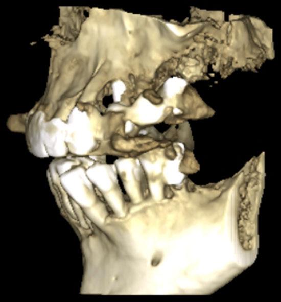 Fig. 3. Reconstrucción tridimensional a partir de TCHC. Vista lateral donde se observa la periimplantitis del implante 24 y proceso patológico sinusal