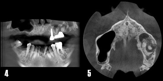 Fig. 4. Corte panorámico de TCHC. Se observa ocupación del seno maxilar izquierdo junto con fragmentos del biomaterial utilizado en una elevación de seno previa. El paciente fue rehabilitado con un puente de tres piezas tras lo que el implante 26 fracasó y produjo una comunicación orosinusal y sinusitis. Fig. 5. Corte axial donde se observa el seno maxilar izquierdo completamente ocupado y con material de injerto radiopaco disperso.