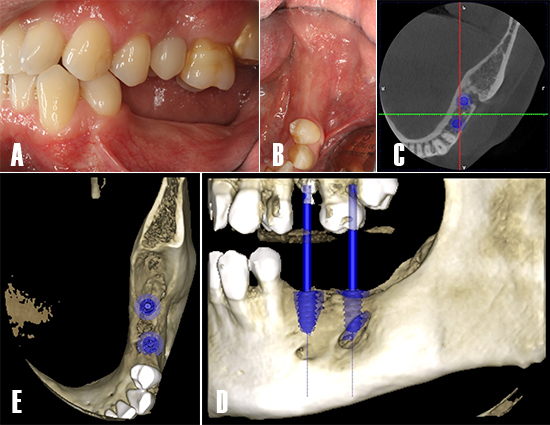 Figura 11. Planificación de implantes. Evaluación intraoral de la zona tratada. A) Se evalúa las necesidades protésicas y calidad de los tejidos blandos. B) En un vista oclusal, se observa los tejidos blandos saludables y presencia de mucosa queratinizada. C) Se realiza una TCHC y se planifica la colocación de dos implantes dentales en posición 3.5 y 3.7.