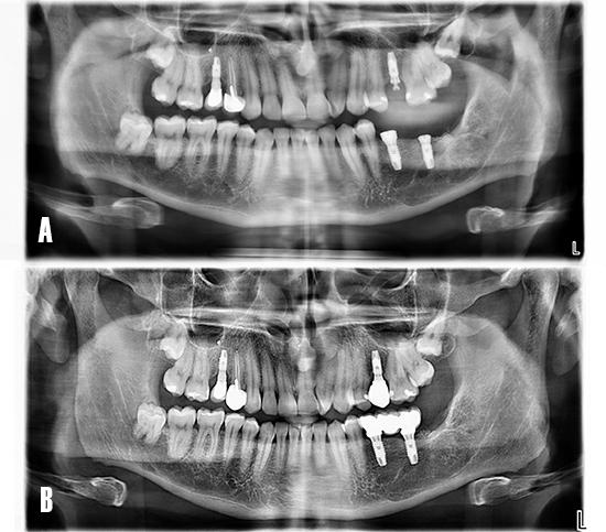 Figura 15. Ortopantomografía. A) Día de la colocación de implantes. B) A los 24 meses tras la carga funcional de los implantes.