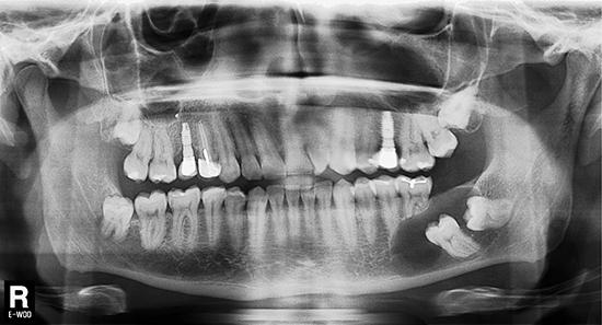 Figura 2. Evaluación radiológica bidimensional. La ortopantomografía advierte la presencia de un proceso osteolítico circunscrito a las coronas de los dientes 3.6 y 3.7 no erupcionados. Nótese la reabsorción radicular de los dientes 3.5 y 3.6 debido a la extensión del proceso osteolítico en sentido antero posterior.