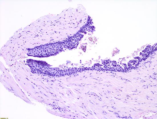 Figura 9. Análisis histopatológico. Se observa la pared quística compuesta por tejido fibroso y tejido conectivo revestido por un epitelio estratificado no queratinizado, y algunos fragmentos óseos.