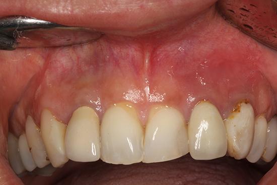 Figura 1. Imagen clínica de la región anterior maxilar de la paciente.