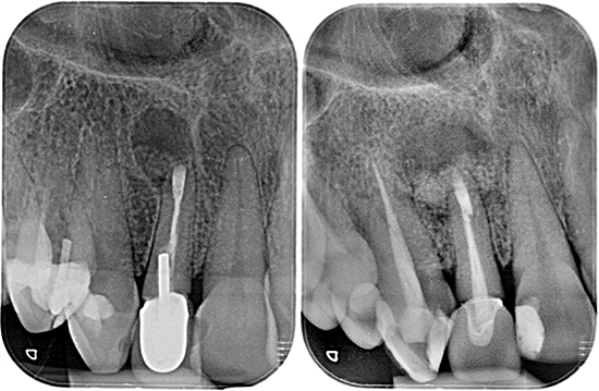 Figura 10 y 11. Radiografías intraorales postoperatorias