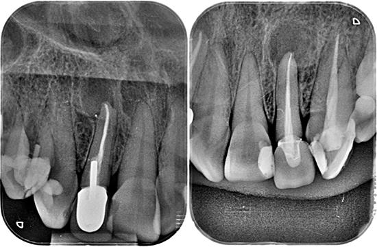 Figuras 2 y 3. Radiografías periapicales del 1.2 y 2.2 donde se aprecian las lesiones apicales.