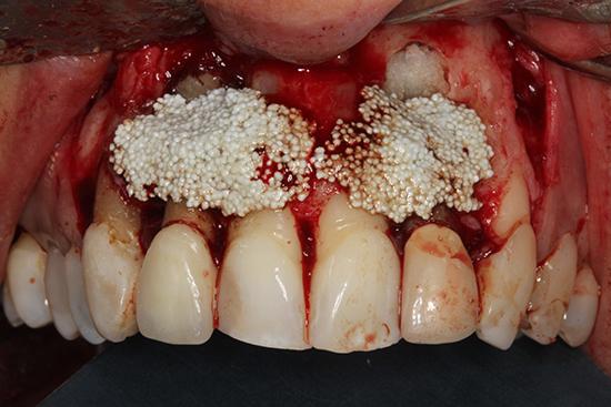 Figura 9. Aspecto clínico tras la colocación de injerto. En la zona apical específicamente se colocan esponjas de colágeno para no interferir en el control radiográfico.