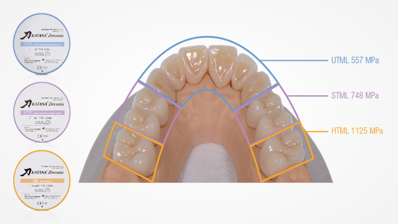 Full-mouth rehabilitation with three different types of KATANA Zirconia
