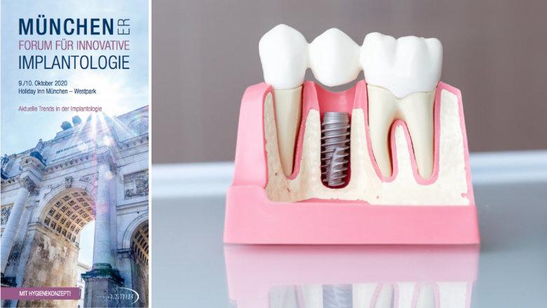 Implantologietrends in München: Jetzt Frühbucherrabatt sichern
