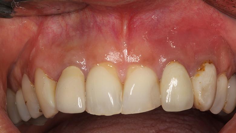 Cirugía periapical y regeneración ósea para un defecto apicomarginal en la zona estética