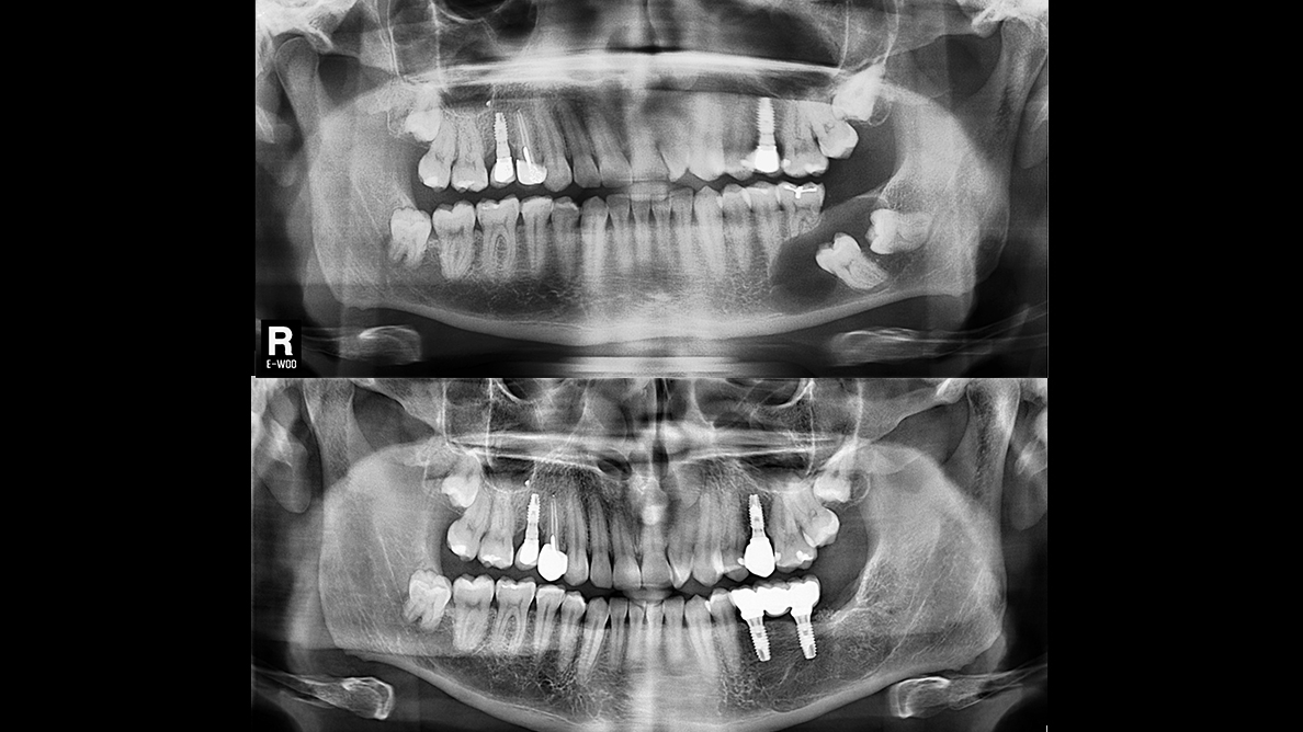 Enucleación de quiste dentígero mandibular y rehabilitación con implantes dentales
