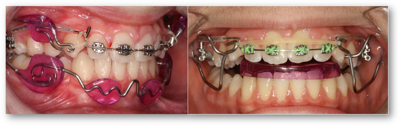¿Debe la industria dental determinar el futuro de la Ortodoncia?