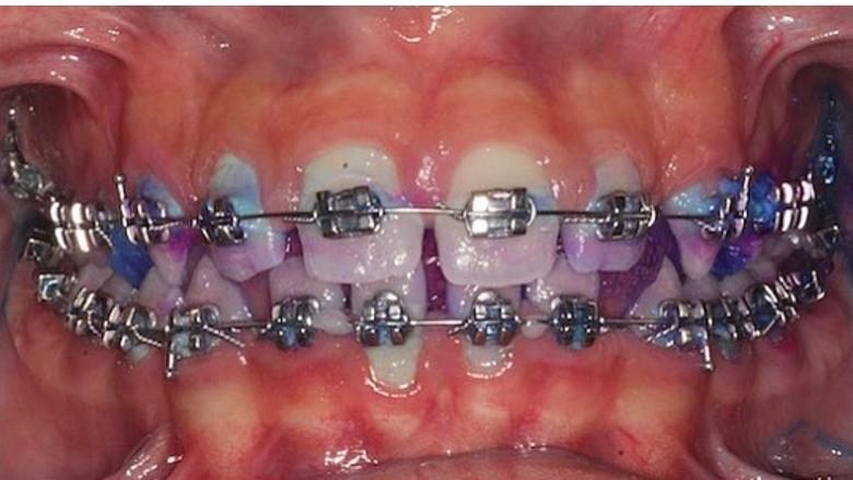 La terapia proattiva nel mantenimento del paziente ortodontico parodontale
