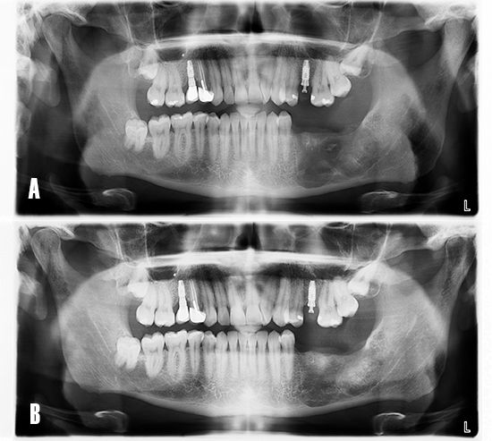 Figura 10. Evolución postoperatoria. El paciente acude a consulta para control radiográfico de la zona intervenida. A) La ortopantomografía evidencia el área menos radiotransparente y sugiere una neoformación ósea de la cavidad quística a los 8 meses. B) A los 12 meses se observa un tejido más radiopaco y con trabeculado óseo, compatible con hueso en fase de maduración.