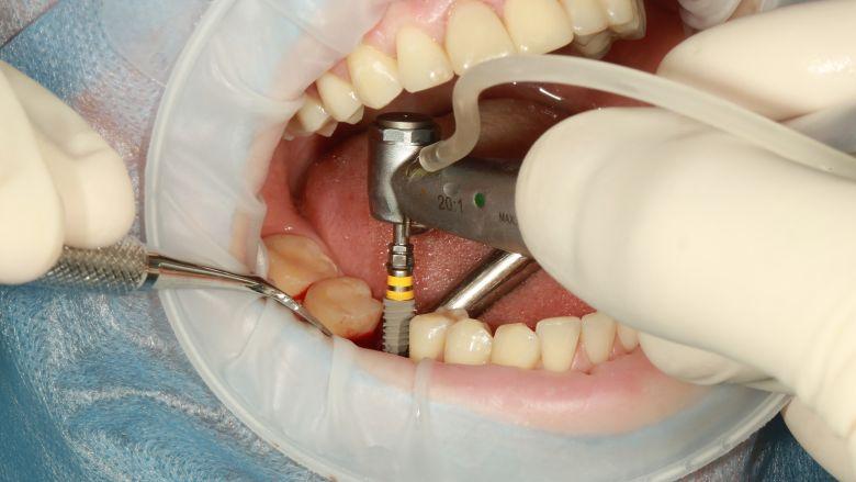 Ontstekingsremmende coatings verminderen mogelijk complicaties bij implantaten