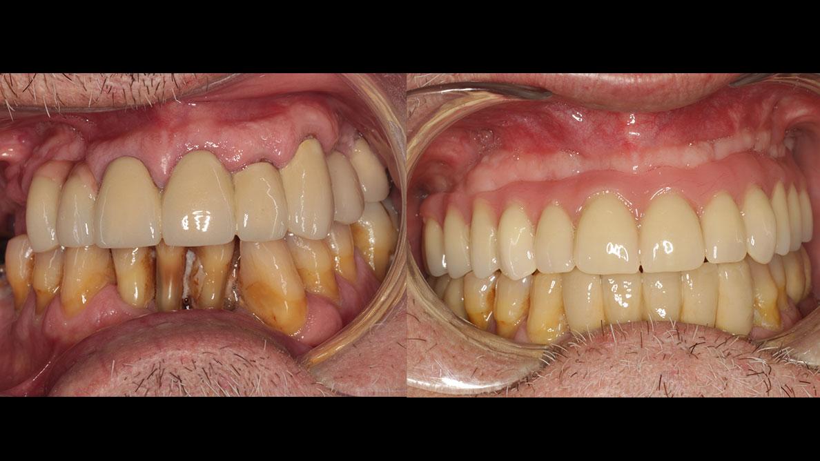 Tratamiento con all-on-four de paciente con dentición terminal