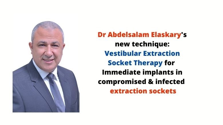 Elaskary's Vestibular Extraction Socket Therapy: Immediate implants in compromised infected sockets