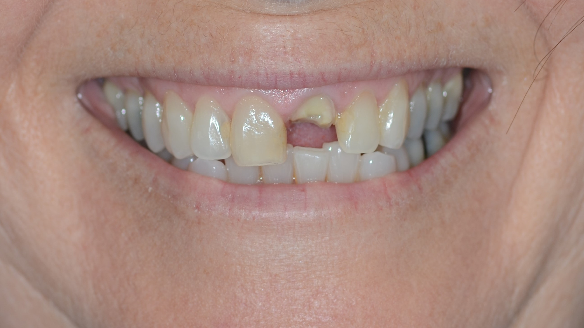 Immediate implant placement and restoration in fractured incisor with external root resorption