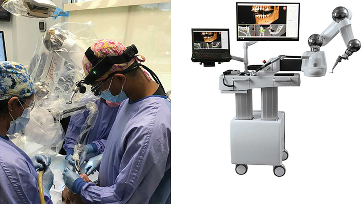 Periodontist becomes one of first to use surgical robotics when placing implants
