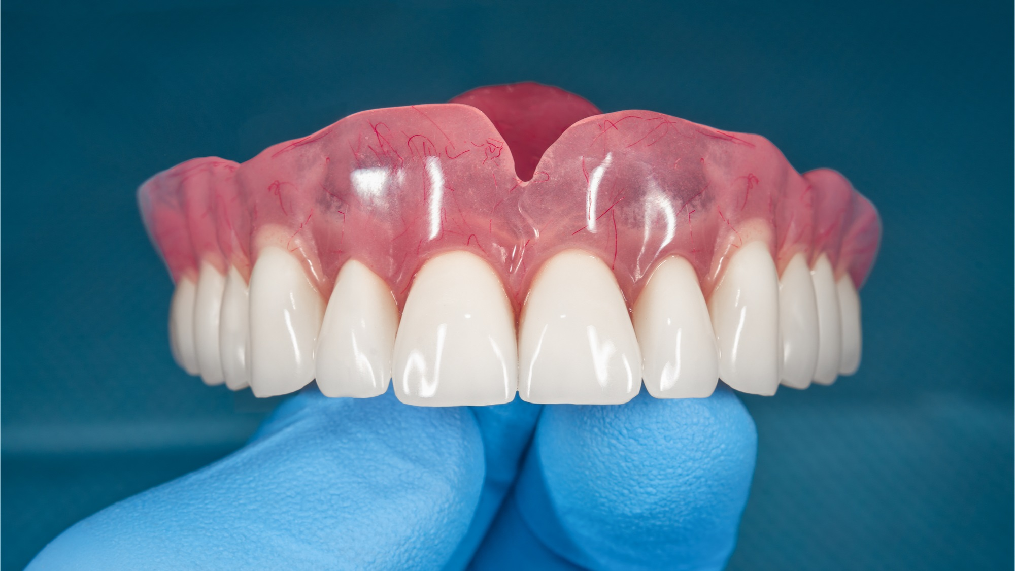 The future is now: Revolutionising dentistry with digital dentures
