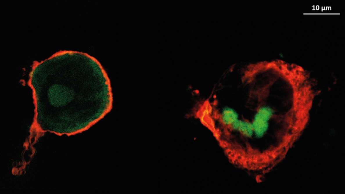 Оказывающие противовоспалительное действие покрытия для имплантатов уменьшают частоту осложнений