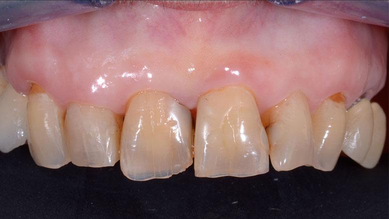 Posizionamento di impianto post-estrattivo a protesizzazione immediata in area estetica mascellare