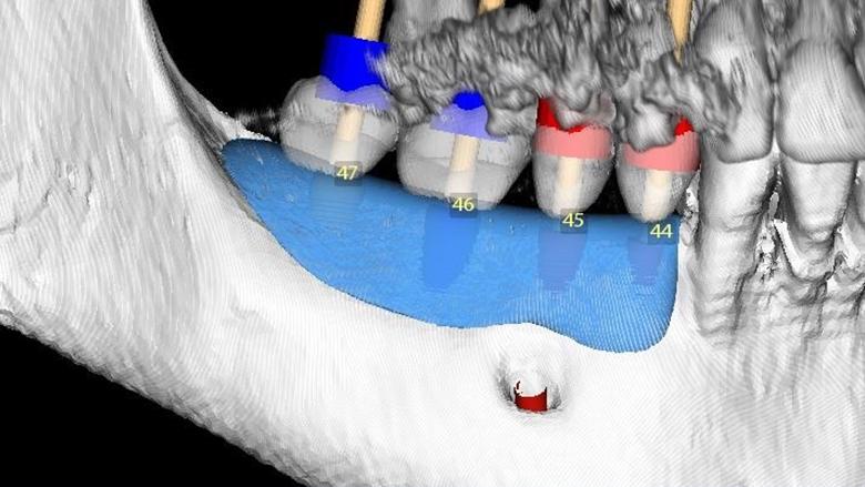Horizontální augmentace hřebene a implantace: Dvoufázová procedura GBR