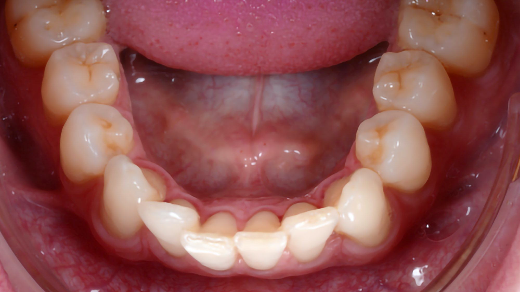 Accelerated aligners with photobiomodulation