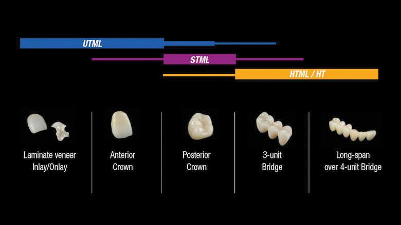 Zirconia multistrato in diversi livelli di traslucenza