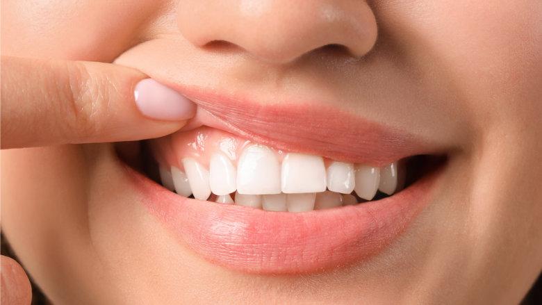 """""""Gingiva-Bleaching"""" gegen dunkle Zahnfleischverfärbungen"""