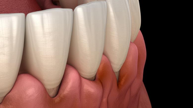 Parodontitis erhöht Krebsrisiko um bis zu 50 Prozent
